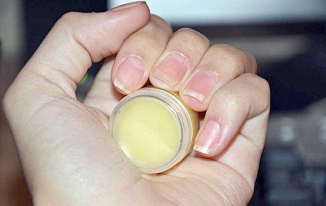انواع ناخن های آسیب دیده و موم زنبور عسل در نگهداری از ناخن
